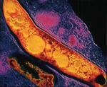 m-tuberculosis